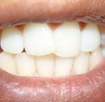 зубной камень в домашних условиях народные средства