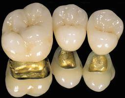 Что ставят на место удаленного зуба — Зубы