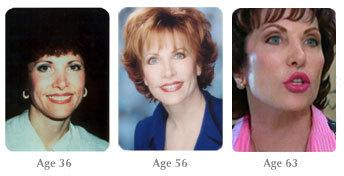 Кэрол Мадджио: до и после