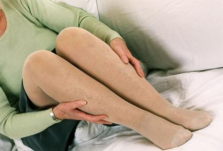 компрессионное белье при варикозе