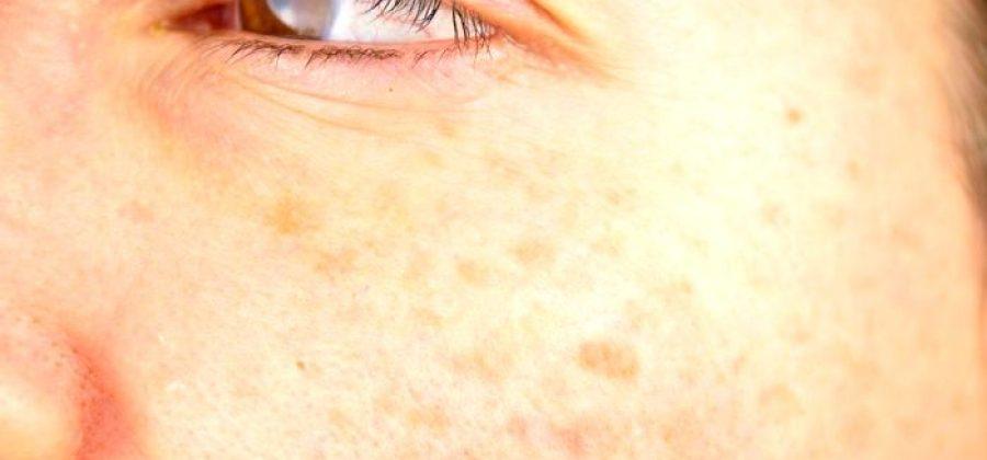 Возрастная пигментация: как убрать старческие пятна на коже?
