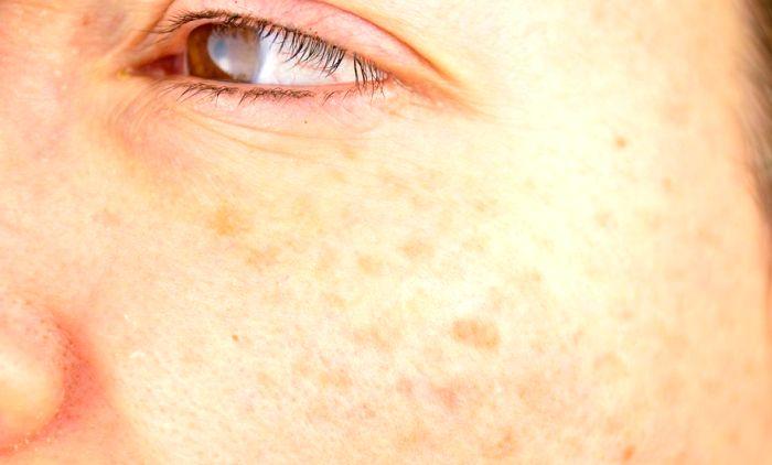 Почему появляются пигментные пятна на лице: заболевание у пожилых людей и методы терапии