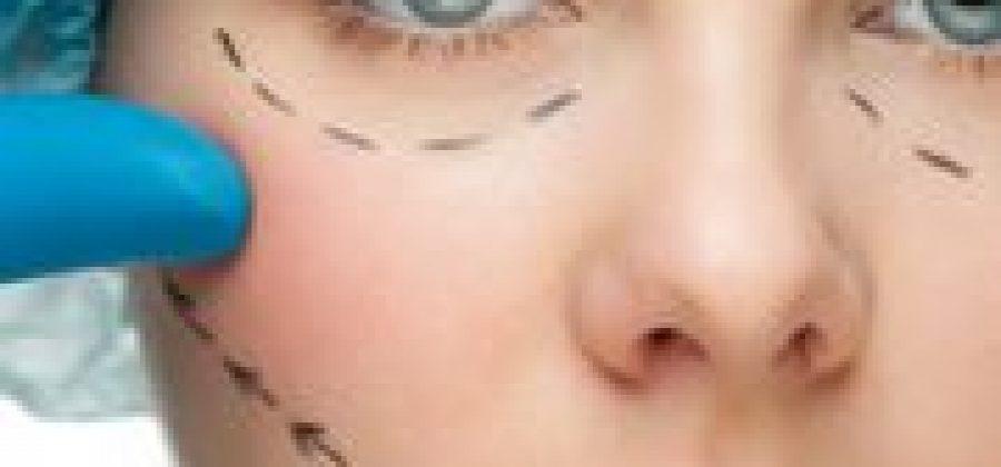 Что такое эндоскопический лифтинг лица?