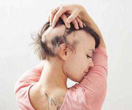 Сухие ломкие выпадающие волосы