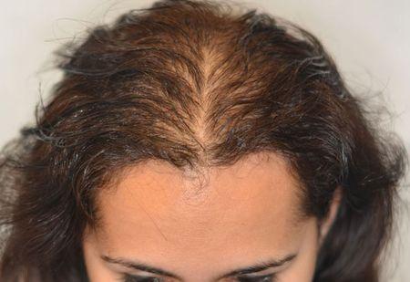 диффузная алопеция у женщин лечение