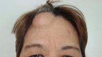 удаление липомы на голове