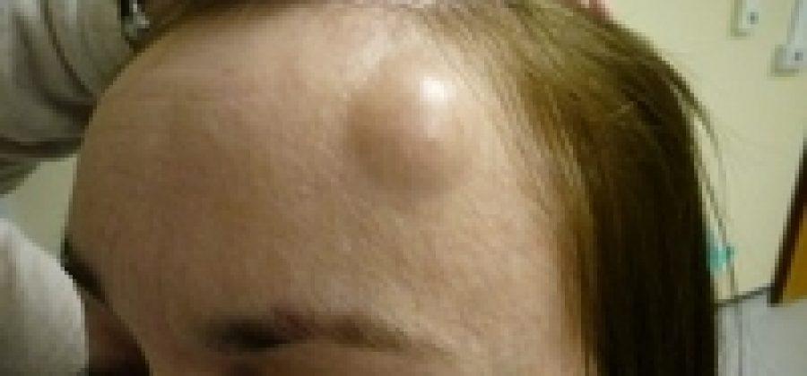 Почему появляется липома на голове?