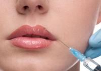 кисетные морщины над верхней губой коррекция