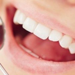 Как стоматологи лечат кариес методом Icon?