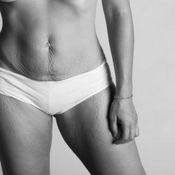 Пластика после родов (грудь, живот, интимная зона)