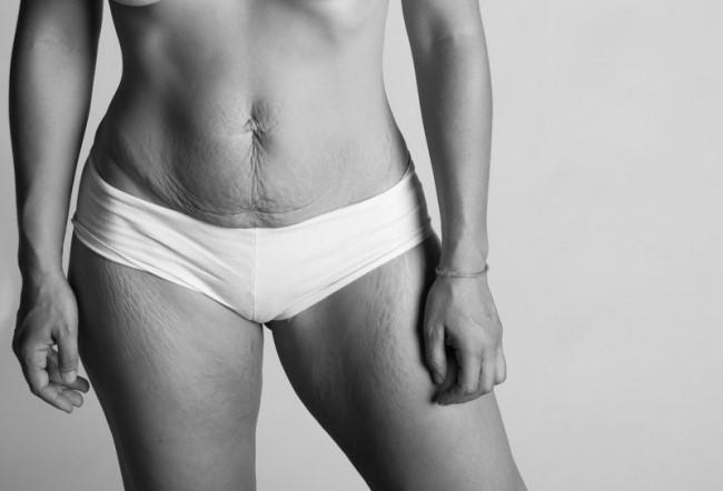 Можно ли подтянуть грудь без имплантов