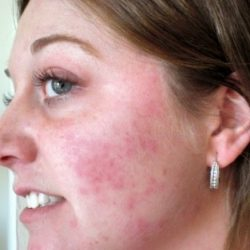 На лице появились красные пятна – как их убрать?