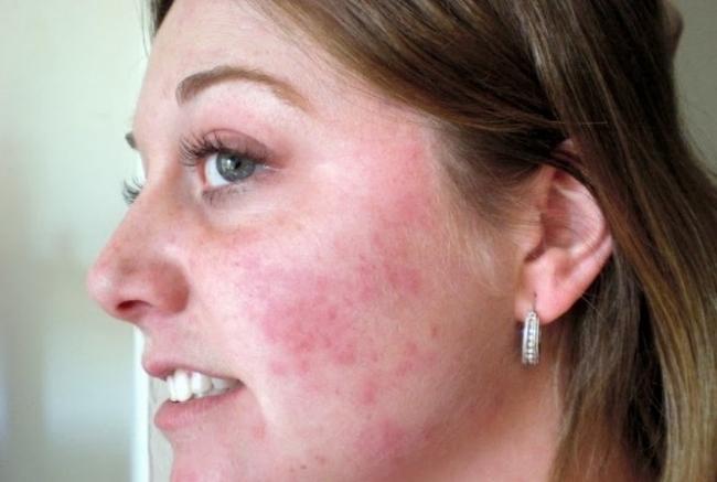 Красные пятна на лице шелушатся и чешутся – причины, как избавиться