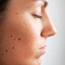 Как удаляют лазером родинки на лице, каковы последствия?
