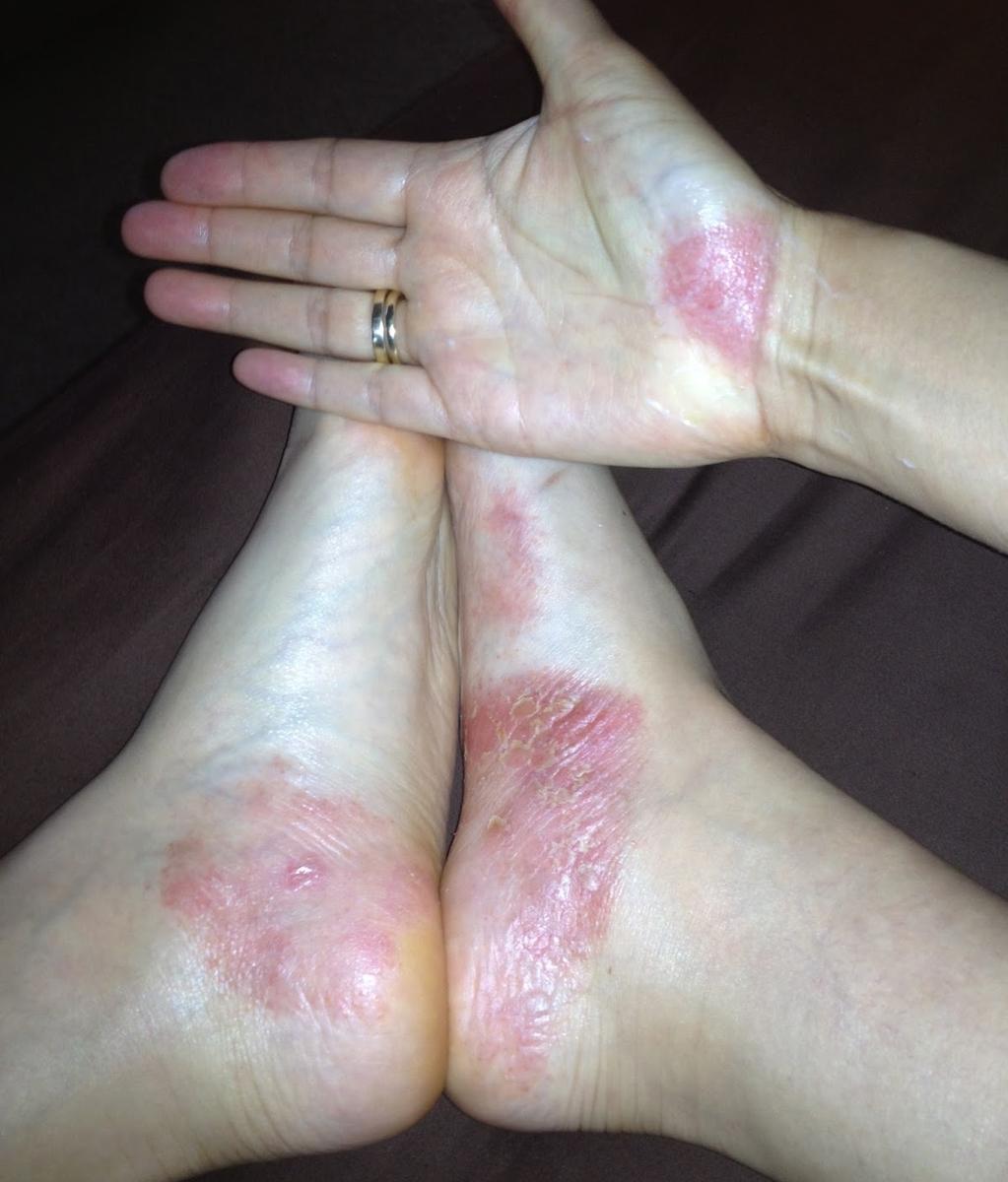 Лечение Псориаза Дегтярным Мылом