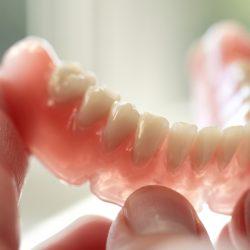 Как побыстрее привыкнуть к съемным протезам на зубах?