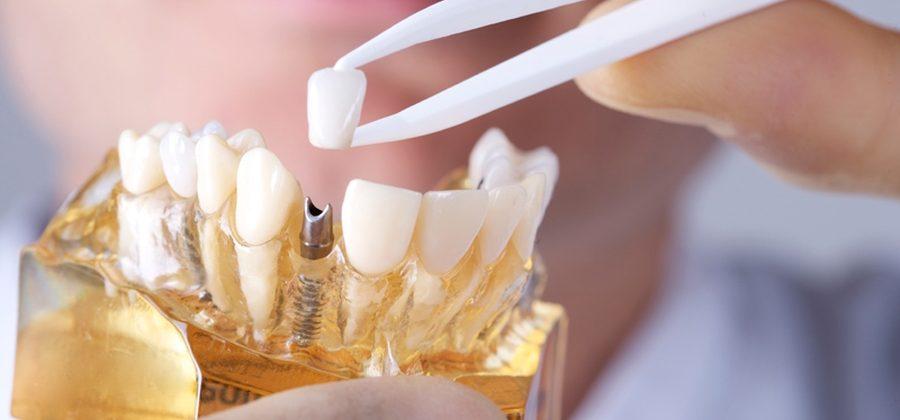Вживлённые зубы – удобно это или нет?