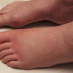 10 способов победить отеки ног у лежачих больных
