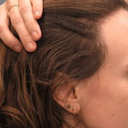 5 эффективных средств от залысин на висках и затылке у женщин