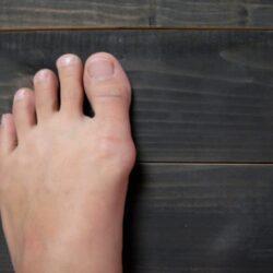 11 способов избавиться от косточки на большом пальце ноги